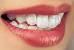 Bọc răng sứ ở đâu tốt quận 1 tphcm (bocrangsu) Tags: bọc răng sứ ở đâu tốt quận 1 tphcm