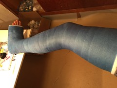 IMG_9057 (stlcrestfan) Tags: llc cast long leg broken