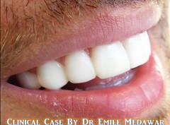 Hollywood Smile Beirut Lebanon Style Dental Clinic  (30) (Style Dental Clinic Beirut Lebanon) Tags: smile by dr style dental hollywood clinic emile medawar