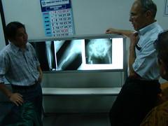 Surabaya 2009-133 (signfracturecare) Tags: indonesia asia xray hip femur preop lewiszirkle