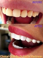 dentist beirut lebanon style dental clinic beirut lebanon (dentistbeirutlebanon) Tags: lebanon smile dr style dental hollywood clinic beirut dentist emile medawar