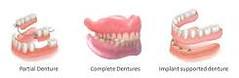 Dental Implants vs Dentures (arthurglosman) Tags: dentist beverlyhills blog