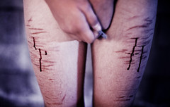Scars Of Our Past. (Dejenee Renee.) Tags: pain truth suicide gore cutting reality awareness harm cuts scars razor dejeneerenee