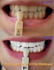 tooth whitening lebanon style dental clinic beirut lebanon (teeth whitening lebanon) Tags: lebanon laser beirut dentist perfectteeth brightsmile teethwhitening toothwhitening whitesmile whitestteeth styledentalclinic