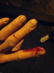 Finger Injury (Canadian Veggie) Tags: blood cut finger injury