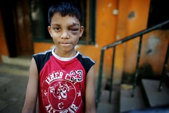 Abdullah's EYE (N A Y E E M) Tags: boy portrait home stairs backyard basement cricket orphan bangladesh chittagong abdullah eyeinjury rabiarahmanlane