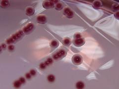 Yersinia enterocolitica growing on C.I.N. Agar - Detail 2 (Nathan Reading) Tags: pink stool bd bacteria microbiology hardy faeces illness hosptial diarrhoea agar bacteriology agaragar yersinia labm biomerieux oxoid yersiniaenterocolitica cinagar yersiniaselectiveagar mesentericadenitis bullseyecolony
