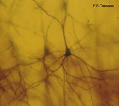 Bosque Cerebral. 1. rboles neuronales. Brain Forest. 1. Neuronal trees. (Esetoscano) Tags: trees plants abstract art plantas rboles experimental arte brain abstracto cerebro microscopy fantasies golgi microphotography fantasas neurons neural neuronas microscopa microfotografa ramasneuronales neuronalbranches