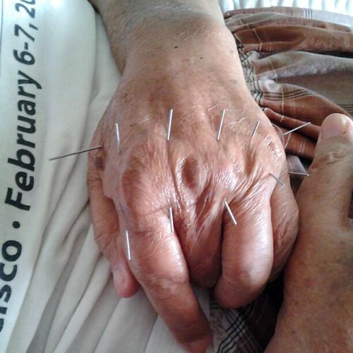 Rawatan akupunktur bagi masalah sendi jari yang bengkak akibat asid urik yang tinggi.