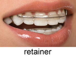 retainer-on-teeth-orthodontic.jpg