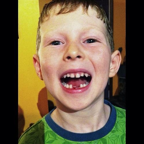 My son lost his second tooth! #igerswinnipeg #igersmanitoba #igerscanada #igdaily #igaddict #statigram #kimija