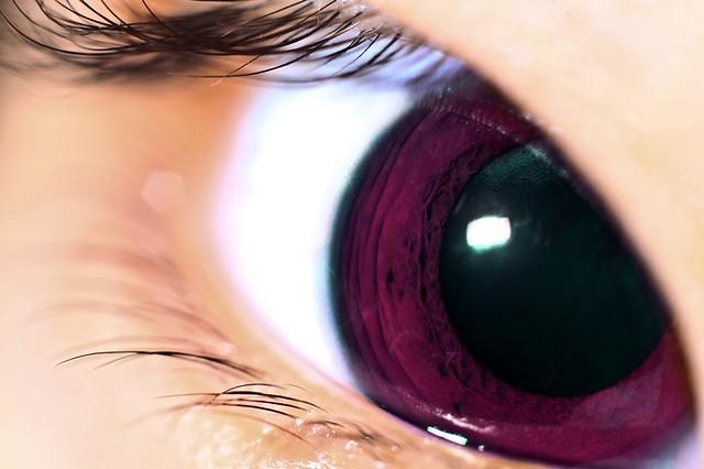 Anime Eye?