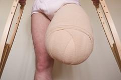20130302-587 (dimka.drugoy) Tags: stump crutches bandage amputee pretending biid