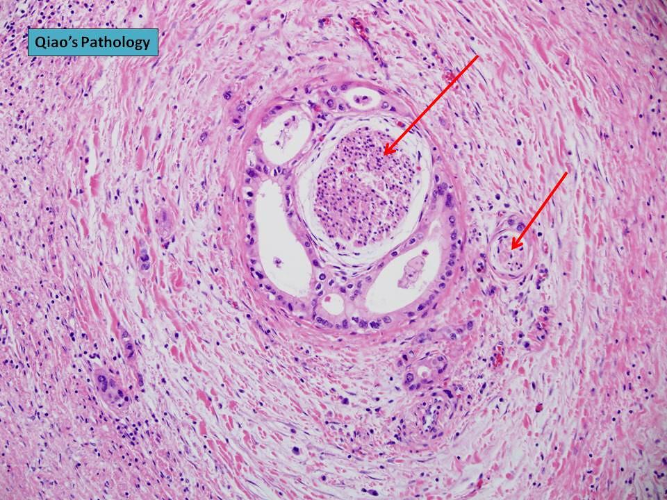 The World's newest photos of pancreas and pathology ...
