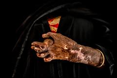 0011_acid-attack-survivor_20130314_7875 (Zoriah) Tags: pakistan portrait color face cambodia acid victim attack photojournalism documentary burn crime bangladesh survivor reportage photojournalist disfiture