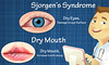 What Do We Know About Sjorgen's Syndrome And Dry Mouth? (ConnectPeak) Tags: gumdisease periodontaldisease drymouthmouthwash periodontaldiseasesymptoms badbreath recedinggumstreatment