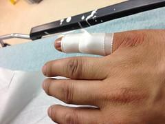 Now We Splint (juan.monroy) Tags: finger injury softball pinkie opendislocation