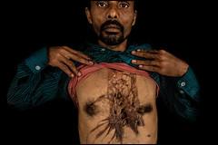 0015_acid-attack-survivor_20130314_7729 (Zoriah) Tags: pakistan portrait color face cambodia acid victim attack photojournalism documentary burn crime bangladesh survivor reportage photojournalist