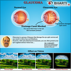 If you have glaucoma, Our doctor will provide you proper treatment. (bhartieye) Tags: bharti eye care glaucoma
