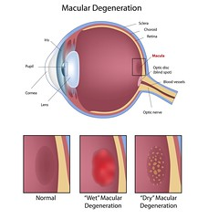 83736805 (UICmedia) Tags: anatomy biology blind body care cell choroid condition cornea crosssection degeneration diagram disc disease dry edema eye fovea health healthcare human icon illustration iris lens loss macula macular medical medicine ophthalmologist ophthalmology optic optical optician optometrist optometry organ problem pupil science scientific sclera sensory sight spot structure tissue vision wet