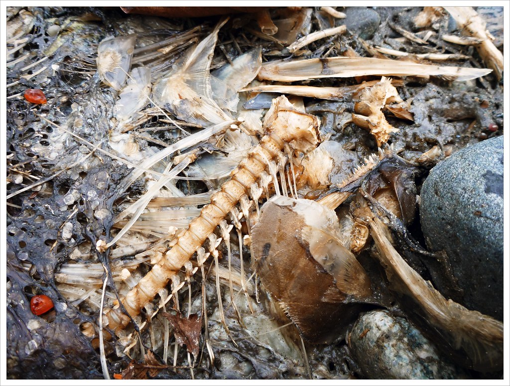death and bones Osteonecrosis means death of bone which can occur from the loss of the blood supply or by some other means bone grafting when a section of the bone has died.