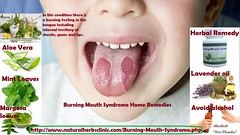 Burning Mouth Syndrome Home Remedies (naturalherbsclinic) Tags: tongue disease illness sickness disorder ailment complaint infirmity affliction epidemic mouth teeth child boy kid human person geographictongue benignmigratoryglossitis glossitis inflammation inflamatory red white border irregular stomatitis erythema migrans symptoms condition burning sensation smarting fissures papillae health medicine oral patient fungus bacteria virus face exam infection pain doctor hospital