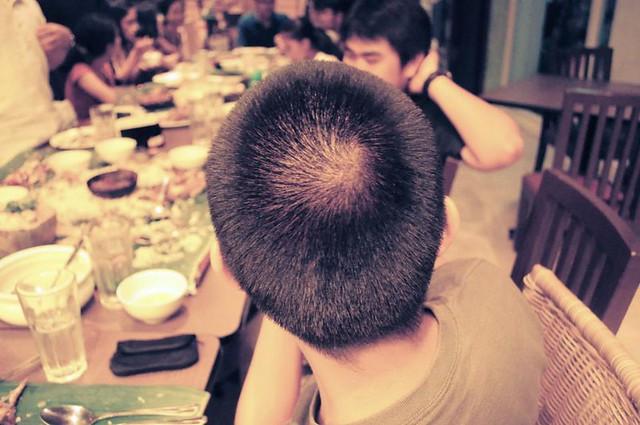 my scalp