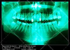Dental X-ray (__Viledevil__) Tags: anatomy buccal dental equipment filling hygiene dentist full mouth panoramic healthcare and medicine human bone teeth xray periodontal disease science service skull technology image blue macro periodontist sanfernando cdiz espaa