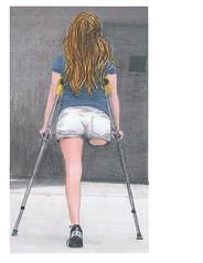 One Leg Amputee Woman Crutches