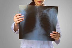 X-Ray (Patrick Foto ;)) Tags: adult asian background bone cancer care chest clinic concept doctor examination examining female girl grey health healthcare healthy holding hospital human isolated laboratory looking lung lungs medic medical medicine nurse occupation person physician professional radiography radiologist radiology ray roentgen stethoscope uniform white woman x xray young