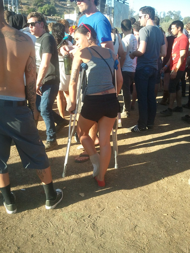 how to get crutches for a sprained ankle