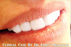 Hollywood Smile Beirut Lebanon Style Dental Clinic  (33) (dentistbeirutlebanon) Tags: lebanon smile dr style dental hollywood clinic beirut dentist emile medawar