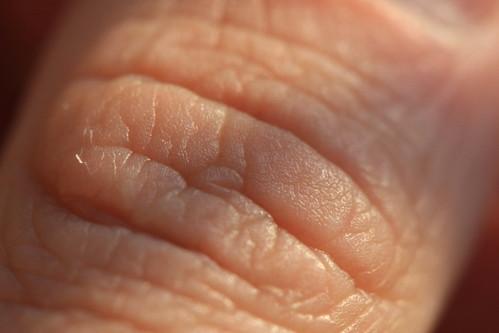 Skin by ChodHound, on Flickr
