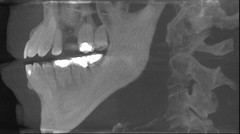 CEPH^LEFTLL^X^2016-01-12^000 (Kordite) Tags: tooth xray selfportrait