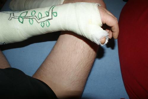gips arm