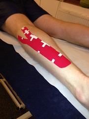 Kinesio taping at back4health (Back4health) Tags: injury dudley westmidlands stourbridge treatment rehabilitation brierleyhill osteopath osteopathy sportsinjury sportstherapy kinesiotaping injurytreatment uploaded:by=flickrmobile flickriosapp:filter=nofilter back4healthpainandinjurytherapycentre