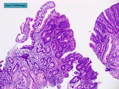 Qiao's Pathology: Tubular Adenoma of Duodenum (Jian-Hua Qiao, MD, FCAP) Tags: tubular microscopic pathology qiaos duodenum adenoma