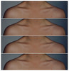 clavicles (jessklein805) Tags: bones collar clavicles