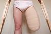 20130302-585 (dimka.drugoy) Tags: stump crutches bandage amputee pretending biid