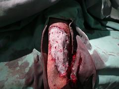 Roxy 's skin graft (Rayya The Vet) Tags: dog canine rottweiller cosmeticsurgery skingraft vetsurgery sarcomaresection