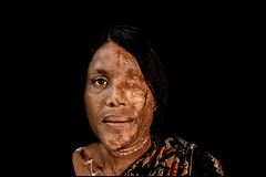 0007_acid-attack-survivor_20130319_8653 (Zoriah) Tags: pakistan portrait color face cambodia acid victim attack photojournalism documentary burn crime bangladesh survivor reportage photojournalist disfiture