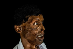 0003_acid-attack-survivor_20130314_7828 (Zoriah) Tags: pakistan portrait color face cambodia acid victim attack photojournalism documentary burn crime bangladesh survivor reportage photojournalist disfiture