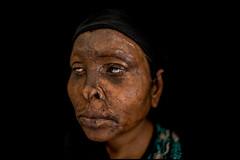 0006_acid-attack-survivor_20130314_7848 (Zoriah) Tags: pakistan portrait color face cambodia acid victim attack photojournalism documentary burn crime bangladesh survivor reportage photojournalist disfiture