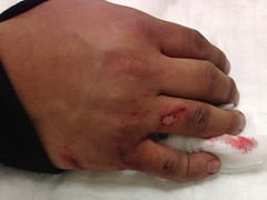 Dislocated (juan.monroy) Tags: finger injury softball pinkie opendislocation