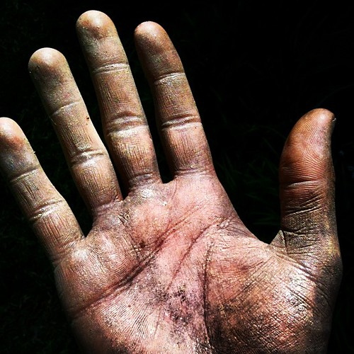 These #hands are #bloody and #aching from #yardwork today. #machete #toomuchmachete