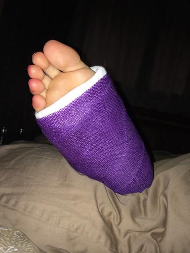broken ankle purple cast - a photo on Flickriver