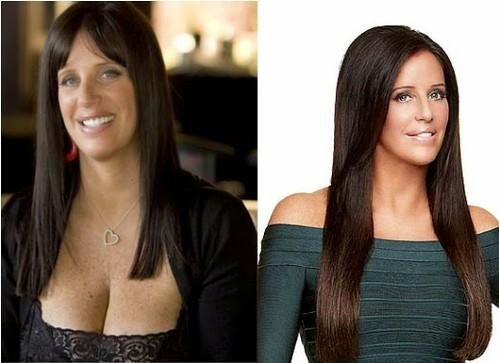 Patti stanger plastic surgery