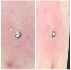Dermal anchor surface piercing by Taylor Bell