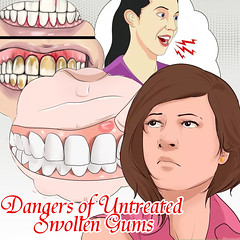 Be Familiar With The Dangers Of Untreated Swollen Gums (canvasdevelopment) Tags: badbreath gumdisease swollengums