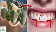 ELIMINATE BAD BREATH IN 5 MINUTES! THIS REMEDY WILL DESTROY ALL THE BACTERIA THAT CAUSE BAD BREATH (shabash23) Tags: eliminate bad breath in 5 minutes this remedy will destroy all the bacteria that cause